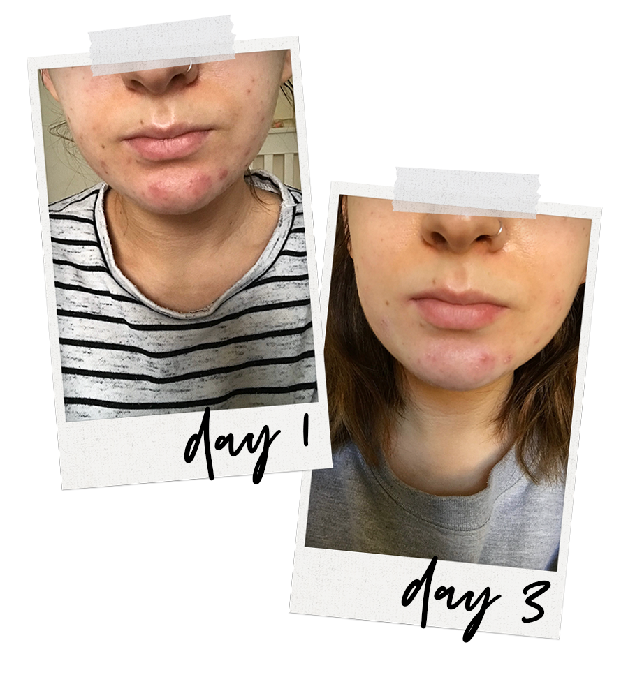 how i cleared up my acne spot treatment how to clear up blemishes and acne